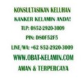Go to the profile of Obat-Kutil Kelamin Kencing Nanah