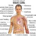 Stem Cell Cure