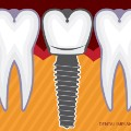 Go to the profile of Dental Implants London