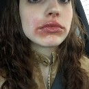 How I Cured My Perioral Dermatitis