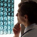 3 Stages of Addiction that Alter Brain Biology