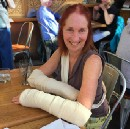 What I Learned When My Wife Broke Both Her Wrists