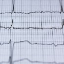 How to Take Charge of a Healthier Heart