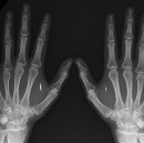 I Implanted an RFID Tag in My Hand. Here's Why
