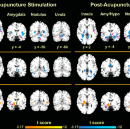 The Neurological Effects of PC-6