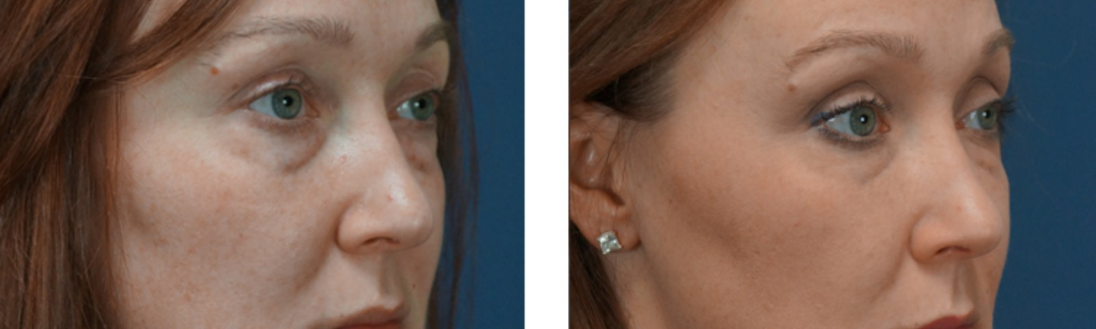 Charlotte Dermal Filler Injectable Procedure
