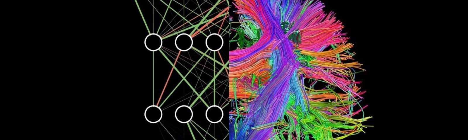 A mixture of an Artificial Neural Network and the Brain Connectome
