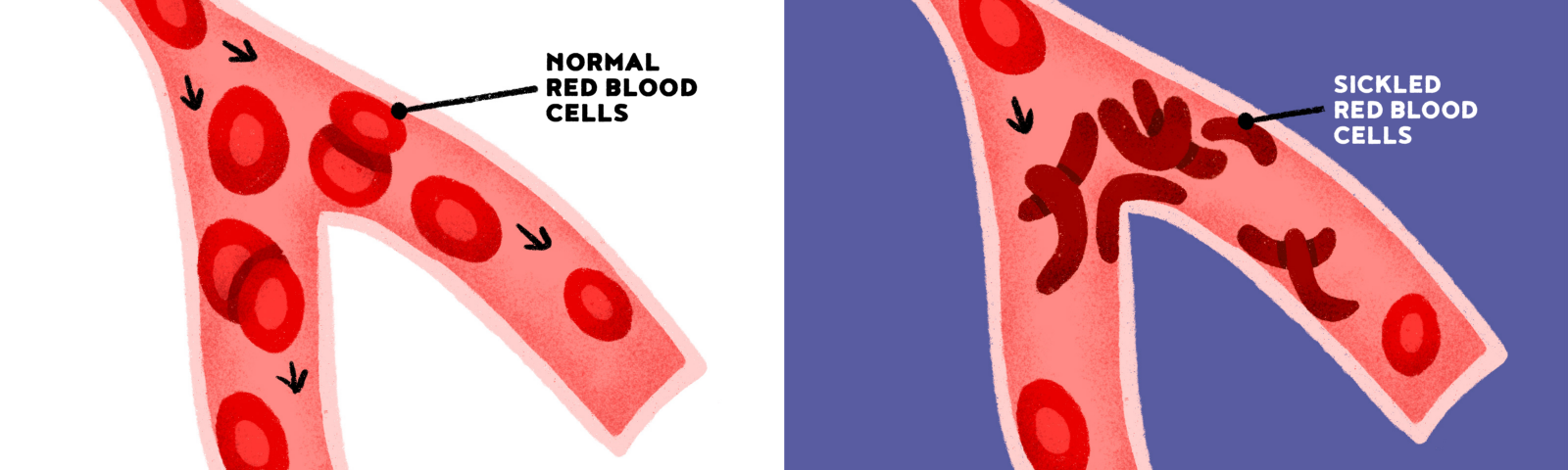 illustrations of blood vessels when the cells are normal and easily flow and when there are sickled cells and the vessels are blocked.
