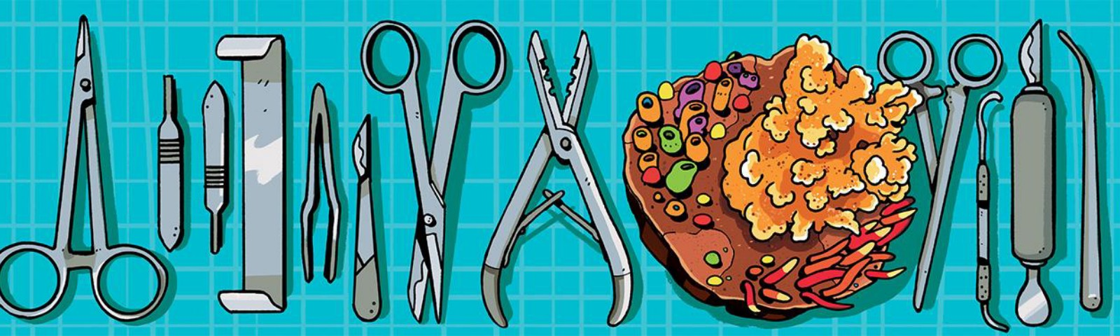 Illustration of surgical instruments laid out on a tray with a piece of orange coral between two of them.