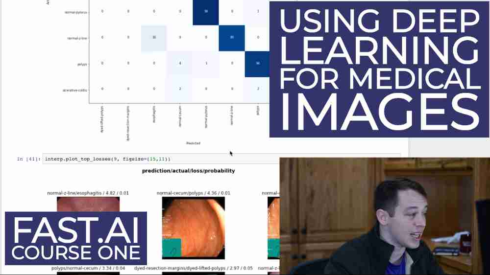 Beginning Deep Learning classifications in the gastrointestinal tract with Fast.ai