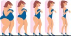 What it's like to get gastric bypass surgery