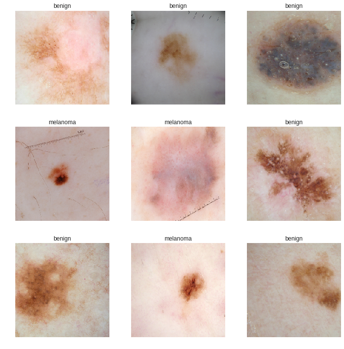 Diagnose skin cancer with Fastai library and Google Colab