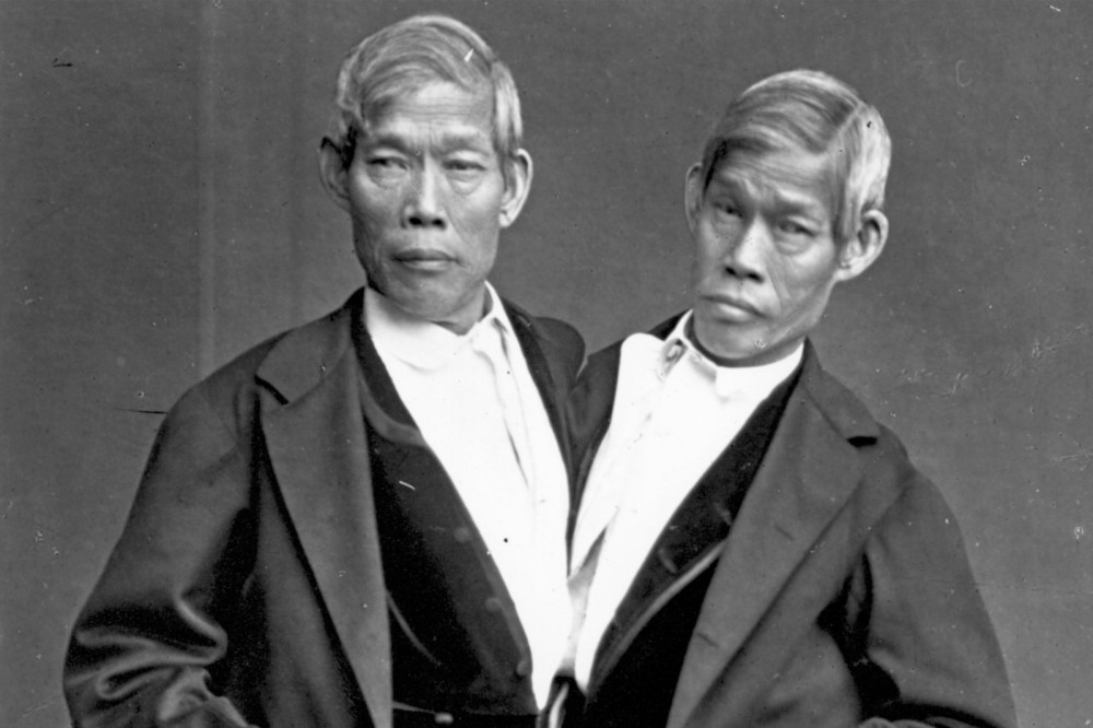 Asian siamese twins