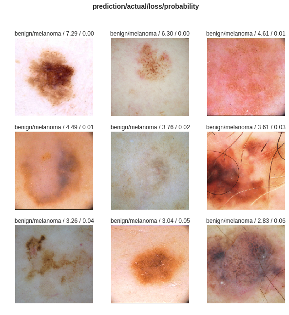 Diagnose skin cancer with Fastai library and Google Colab – mc ai
