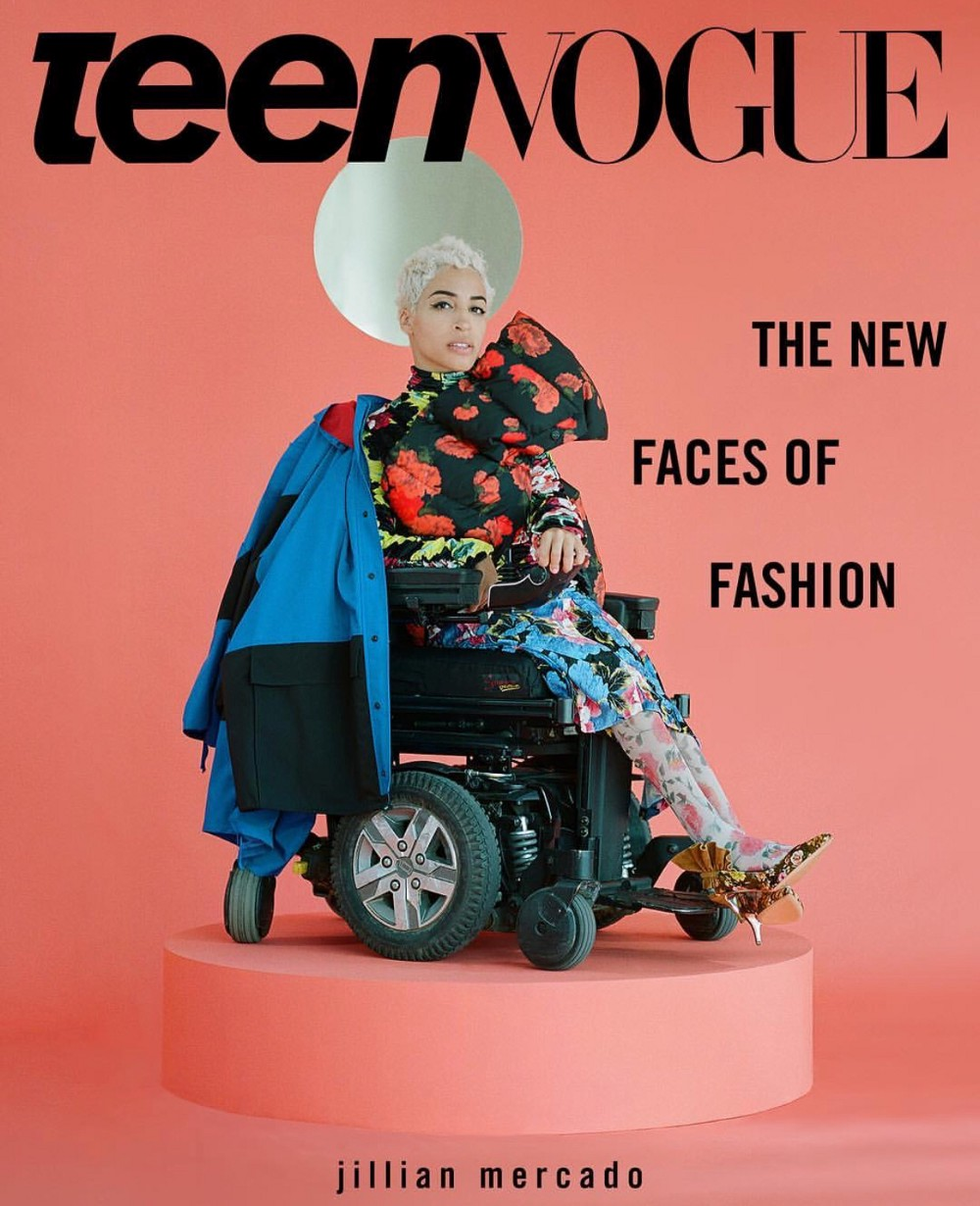 It's about DAMN TIME… A disABLED Model slays the pages of Teen Vogue!