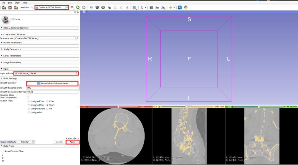 Spine Segmentation using U-Net – mc ai