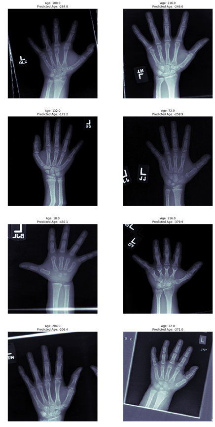 Bone Age Prediction with X-rays – mc ai