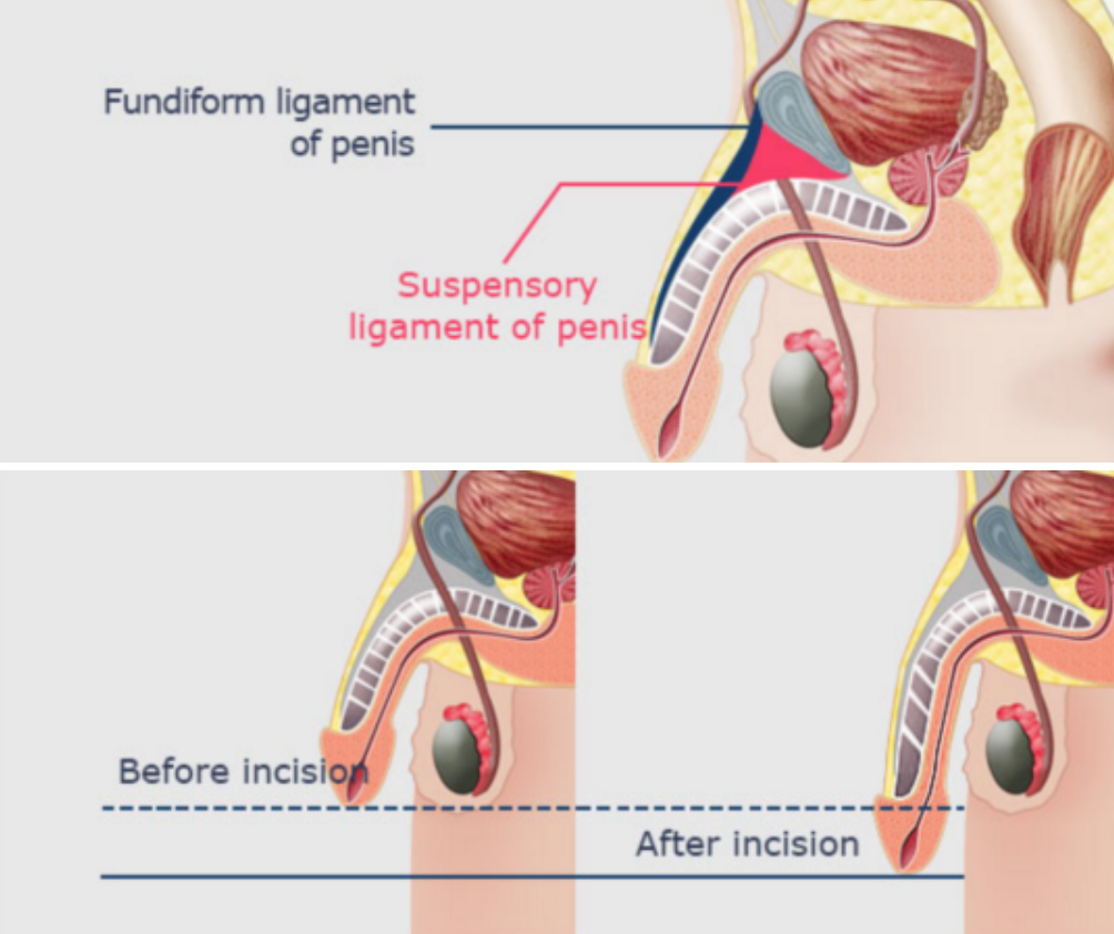 Truth Or Dare Penis Enlargement Procedure Can It Make Your Penis