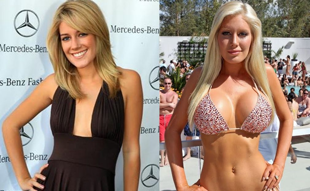 breast Celebrities implants with