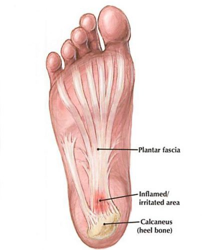 a07c7e897e Plantar fasciitis usually presents itself as a sharp pain on the bottom of  the foot or at the base of the heel. Plantar fasciitis is caused by  inflammation ...
