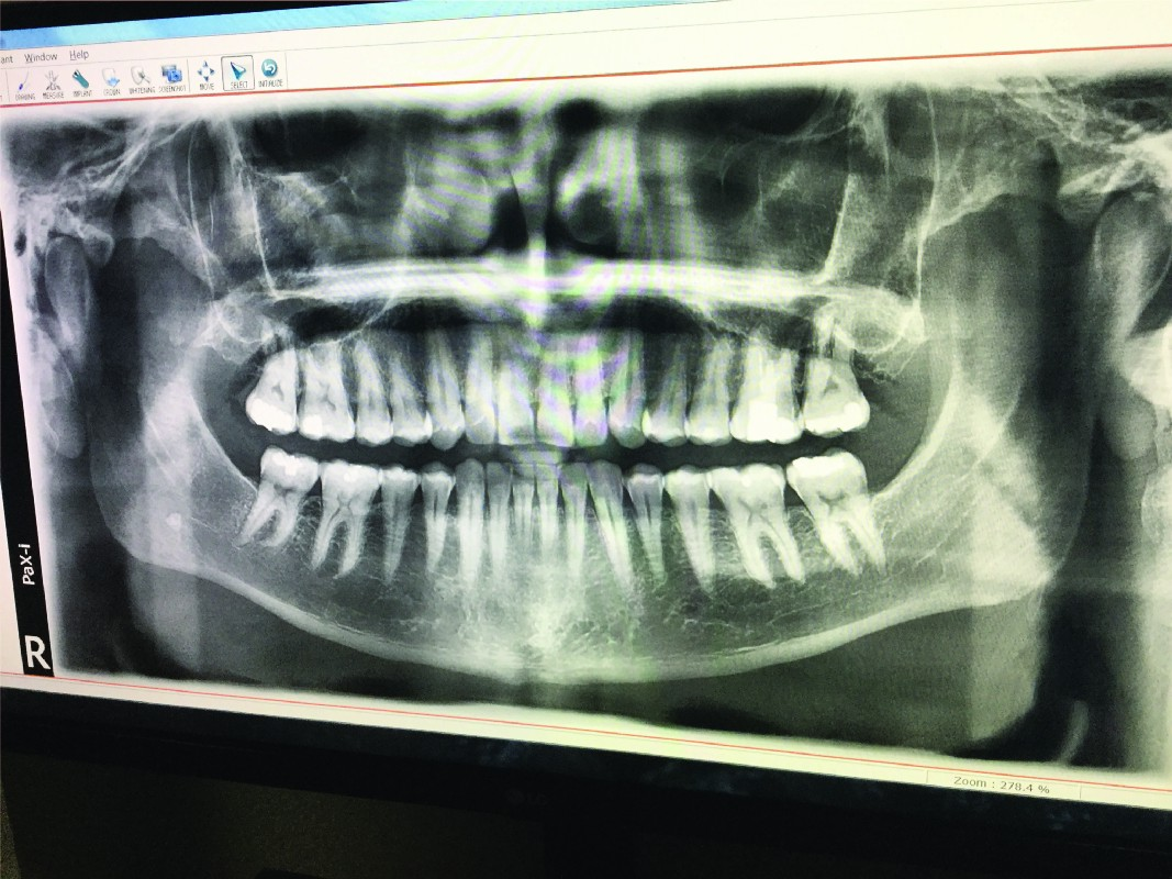 Panoramic x ray of teeth on a computer screen at the dental clinic in Mexico