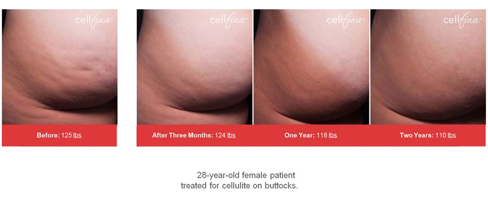 6df8870fb2fa1 Women, suffering from cellulite are likely to feel greatly embarrassed when  they happen to wear bathing suits. The cellulite bumps over their body are  too ...