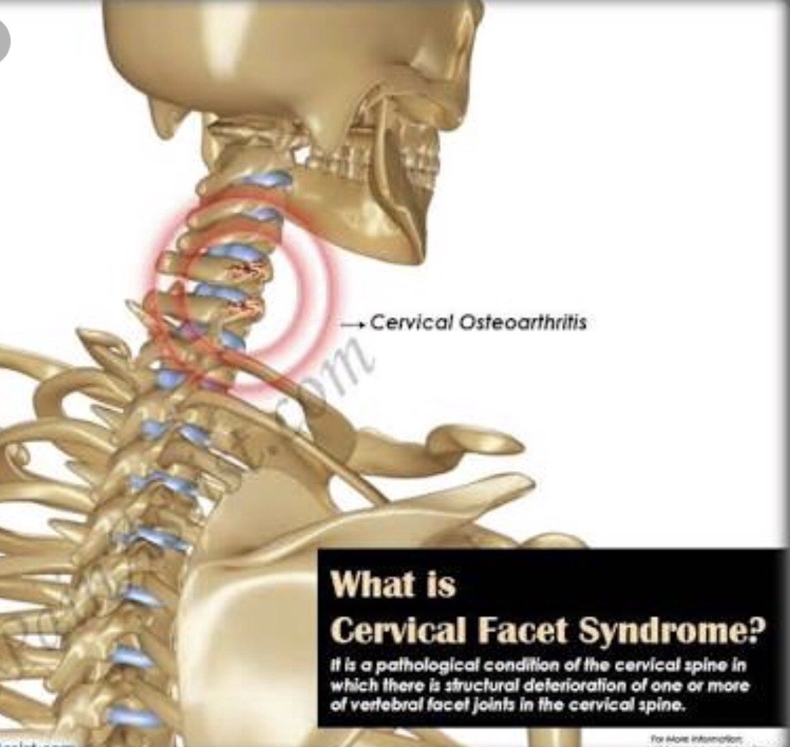 Cervical Problem Many Of Us Suffer From This And Dont Know About This