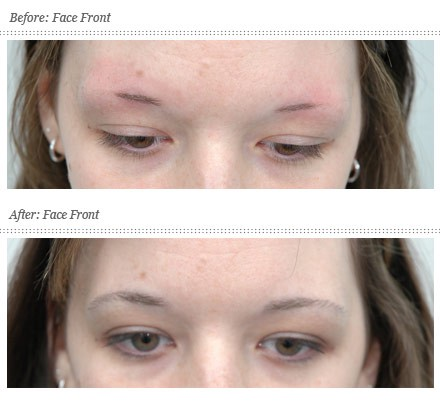 What Is Best Treatment Of Eyebrow Hair Loss Best Hair Transplant
