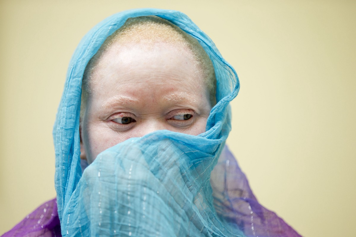 'We Are Being Hunted Like Animals:' Malawi's Albino People ...