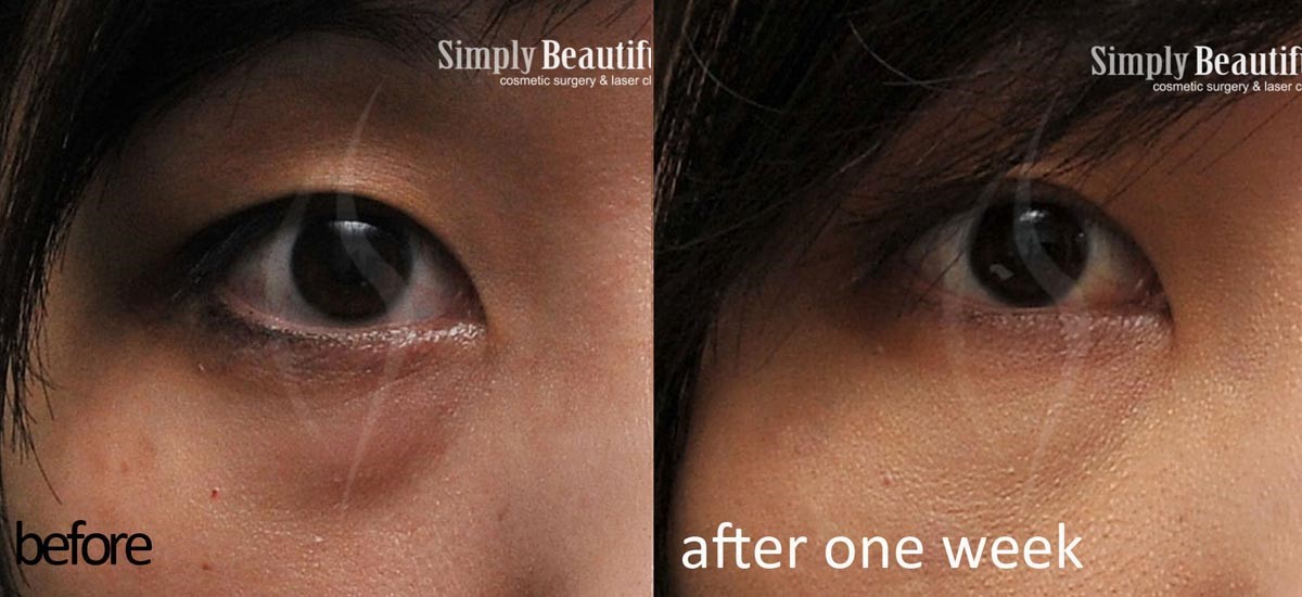 Ebrsingapore The Different Stages Of Eye Bags Eye Bag Removal