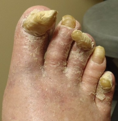 Nail Fungi — 4 Causes And Danger Factors Of Toenail Fungus