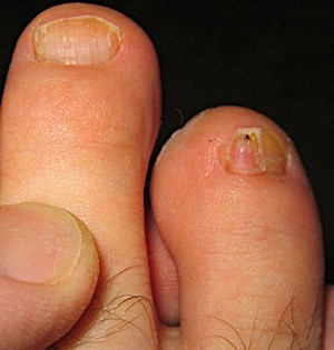 How to Get Rid of Toenail Fungus Permanently – Yellow Toenails Cured ...