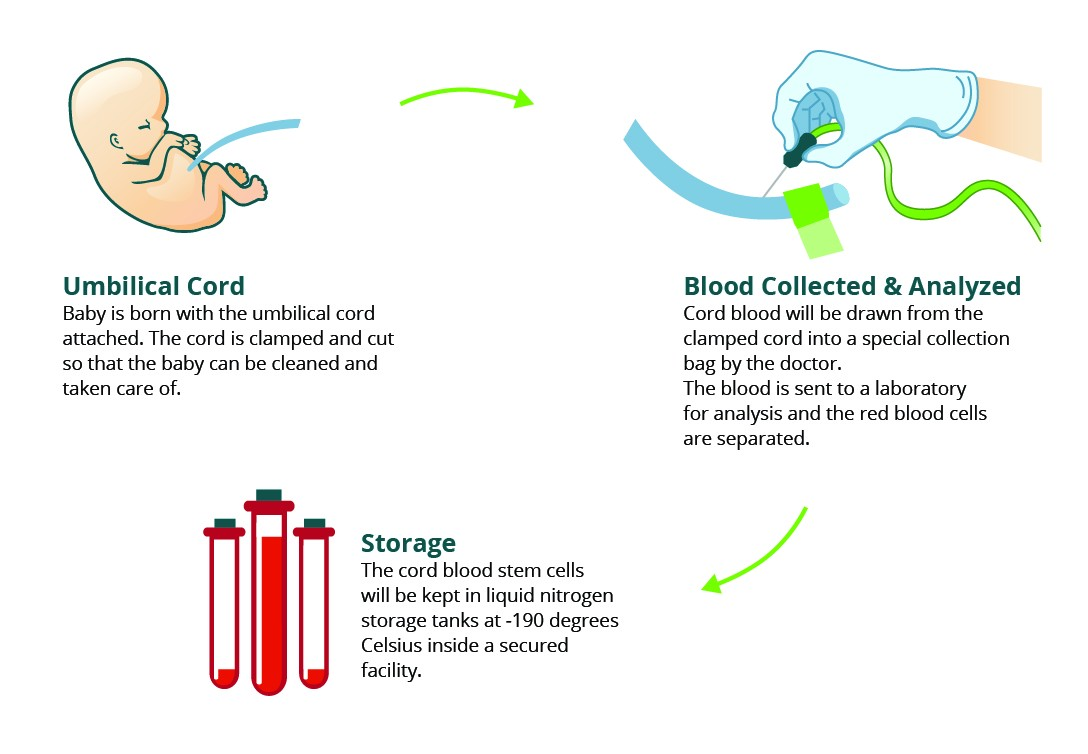 Umbilical Cord Blood Banking A Need For Healthy Society