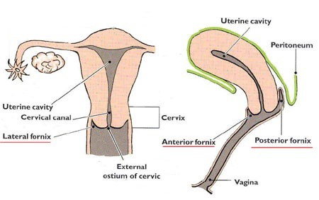 The Cervix Has A Canal As You Can See From This Picture In Reality The Cervical Canal Is A Closed Tight Passage Thats Covered By Thick Mucus Most Of