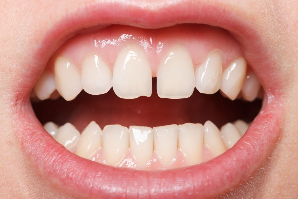 How To Grow Back Your Chipped Tooth Mike Lehman Medium