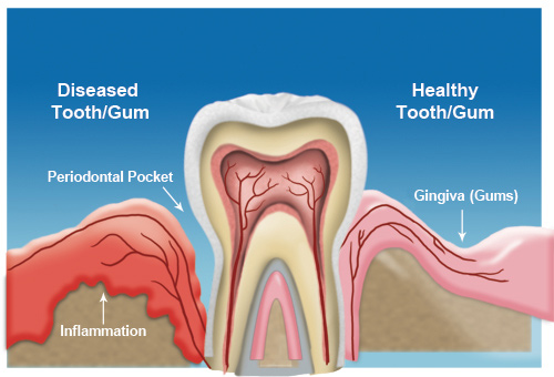 Home Remedy For Swollen Gum Around One Tooth Dr Alica Brown Medium