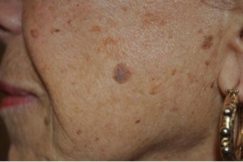how to get rid of seborrheic keratosis with hydrogen peroxide