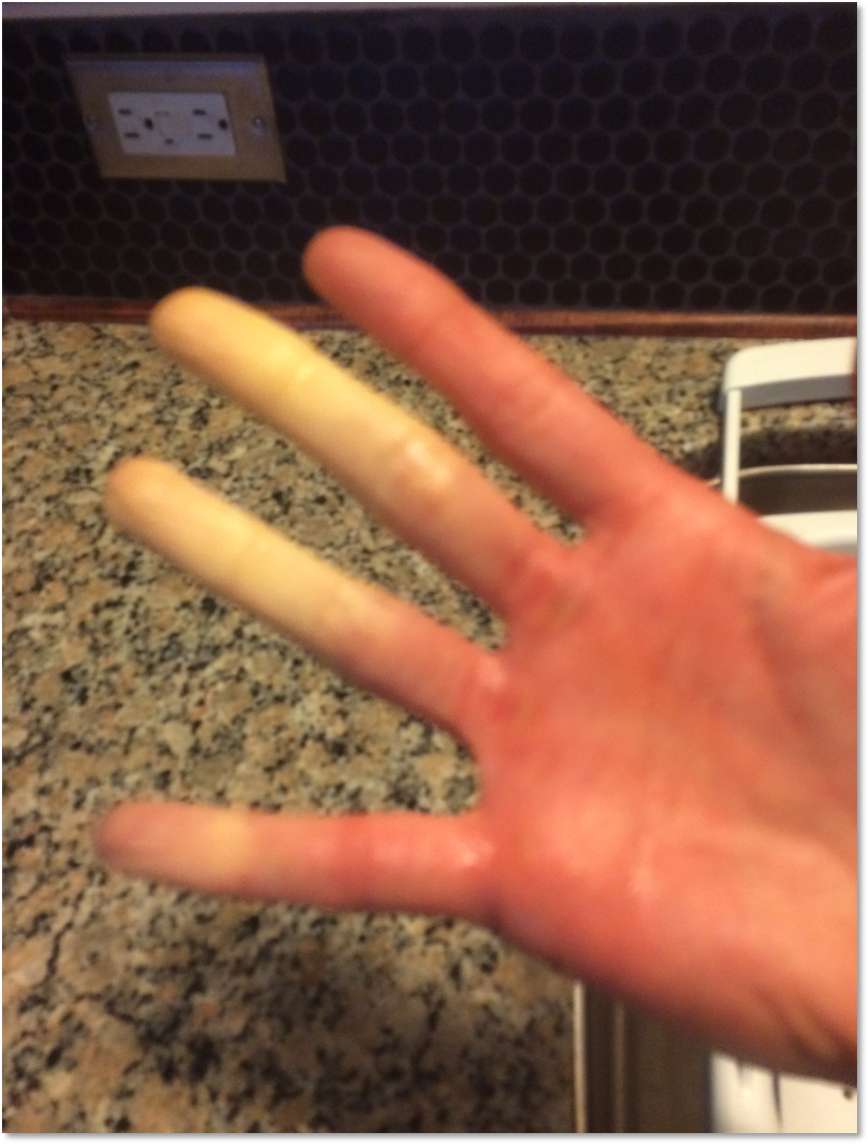 Ouch! Primary Raynaud's Disease after 5 minutes walking to the mailbox and  wearing gloves in 50 degree weather.