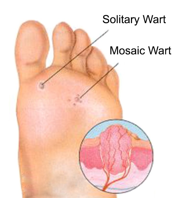 They Are Foot Or Plantar Blemishes Usual Growths Level And Also Excrescences Maybe The Toughest To Deal With