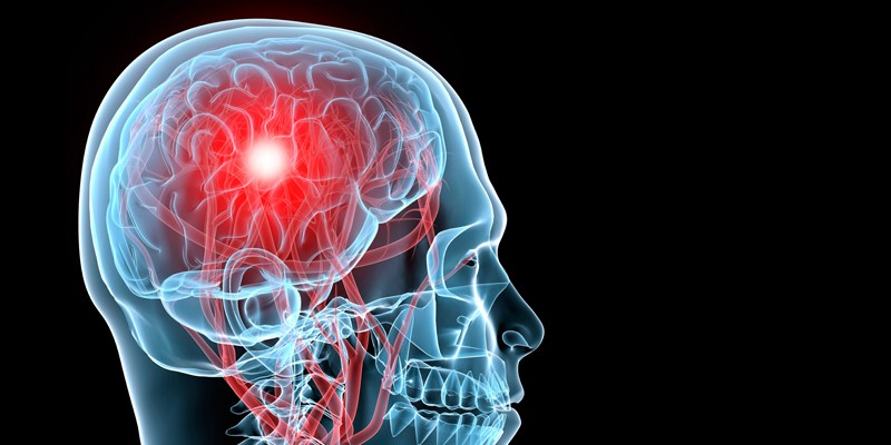 hyperbaric oxygen and brain trauma Hyperbaric oxygen therapy is the first treatment ever that's been shown to heal traumatic brain injuries, and it might be the next important step towards helpin.