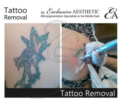 Getting Your Tattoo Removed through Non — Laser Treatment!