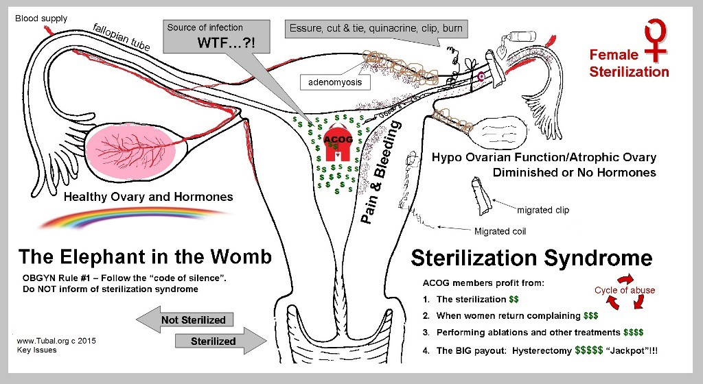 The Cycle Of Abuse Female Sterilization Essure Tubal