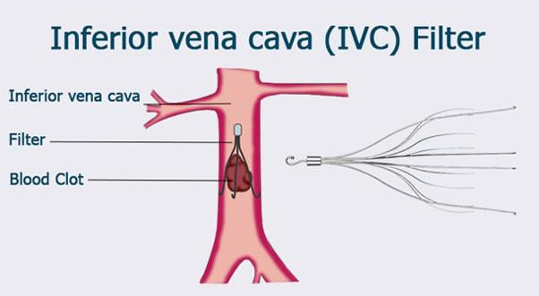 ivc filters and their post-medical complications – ivc filter ...