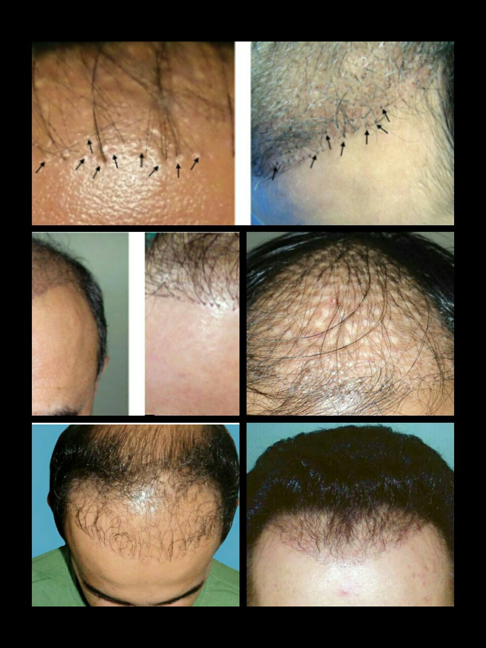 Repairing Bad Hair Transplants Dr Naveed A Khan Medium