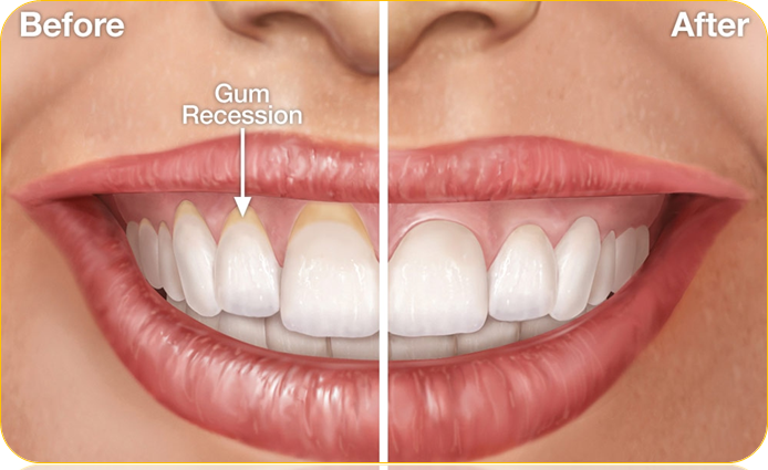 Can receding gums be reversed