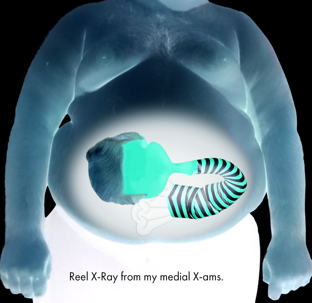 X-Ray of Drumpf's gut to verify his claims. (Balls X-Ray not shown.)