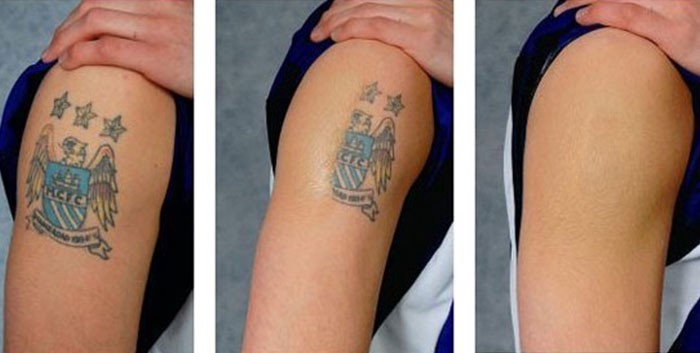 Tattoo Removal Services in Birmingham Just Got Easier