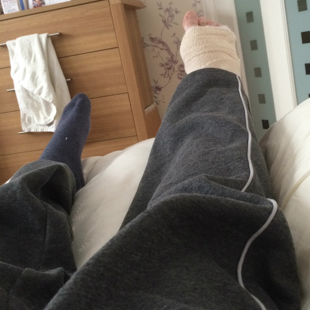 58c1416bc9 My fractured year: A broken ankle diary – Darryl Chamberlain – Medium