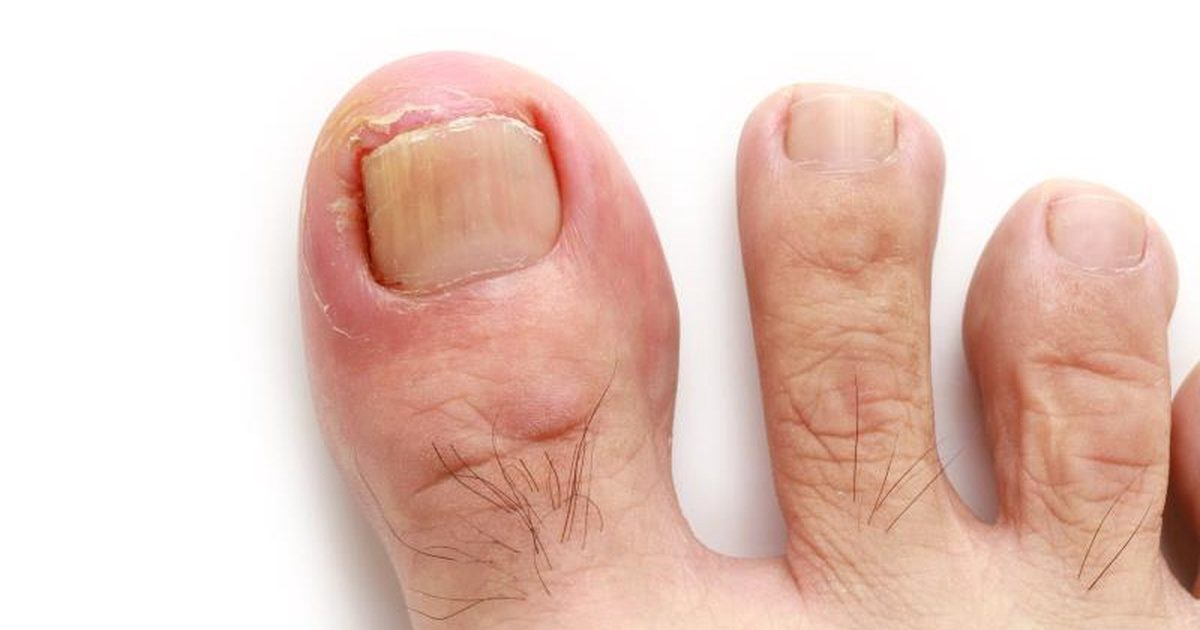 An ingrown toenail is sometimes cited by means of medical doctors as ...