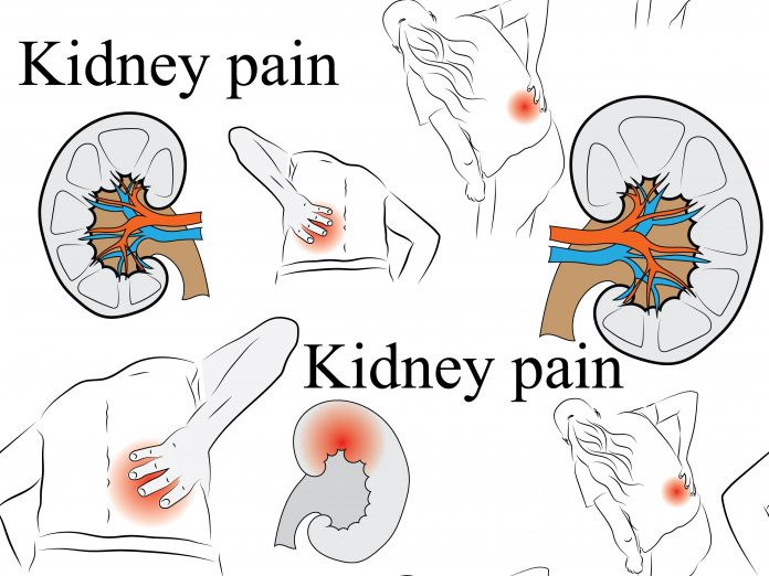 Where Is Kidney Pain Felt Diagram